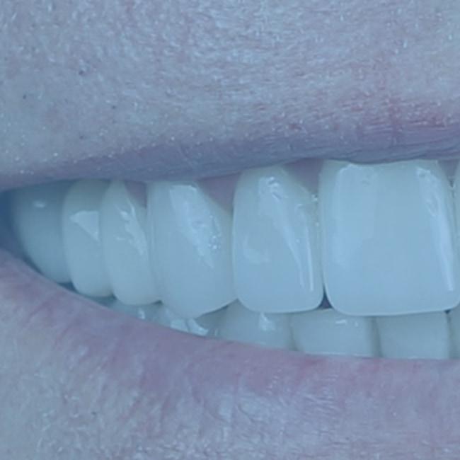 Carillas dentales premium
